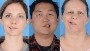 ワクチン 副作用 顔 コロナ