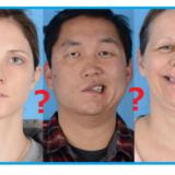 口元が歪んだ顔写真(ベル麻痺)が新型コロナワクチンの副作用だとする主張の嘘
