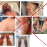「新型コロナワクチンのせいで重い皮膚障害が起きた」は根拠なし